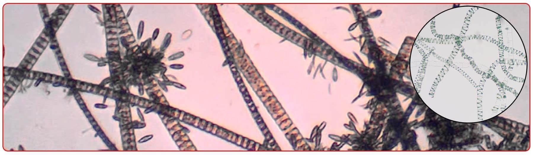 Аквариумные водоросли под микроскопом